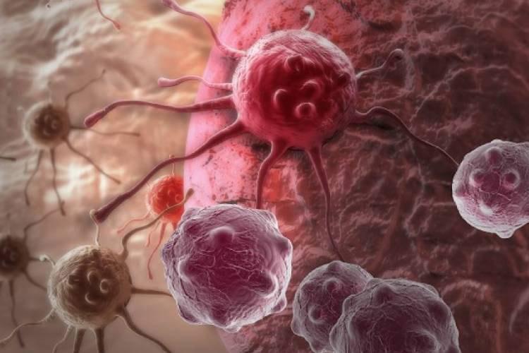 درمان سرطان پانکراس به کمک نانوذرات پپتیدی بهبود می یابد
