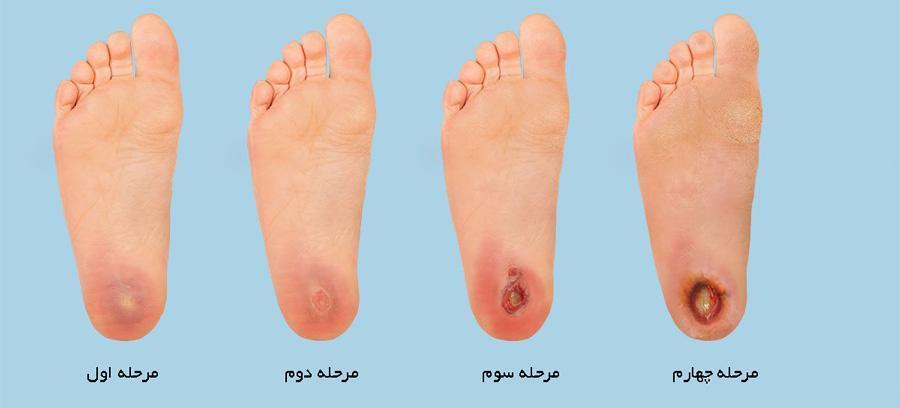 زخم دیابت و روش های درمان