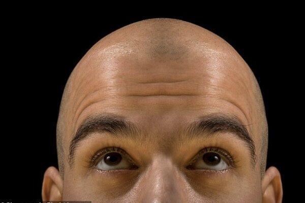 ریزش مو در بیماران کرونایی تا دو ماه پس از بهبودی ادامه دارد