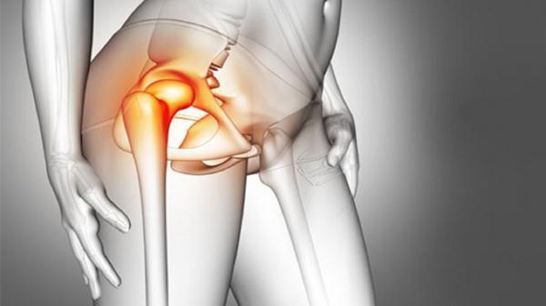 درد لگن در ناحیه مفصل ران چه دلایلی دارد؟